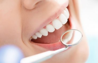 The Dental Insurance Guide